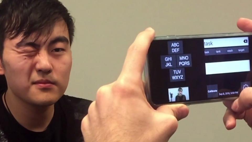 眼球萎缩图片_微软新app识别眼球运动转化为文字